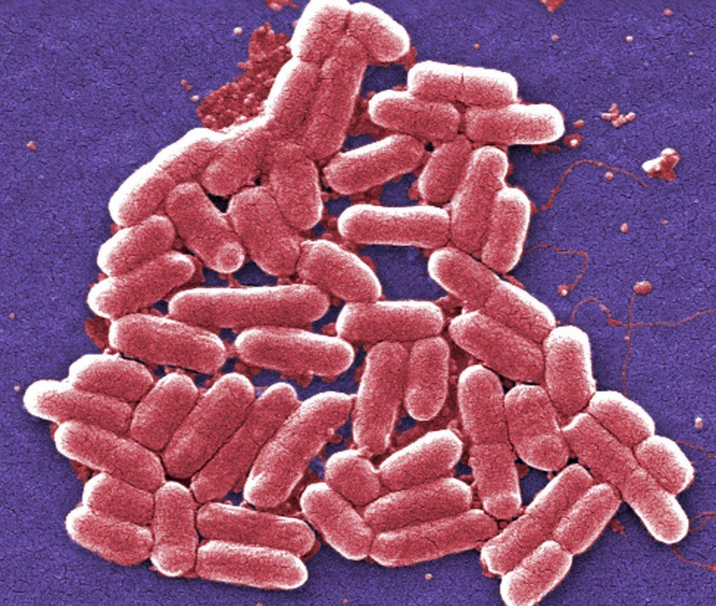 E.coli 0157 bacteria under magnification