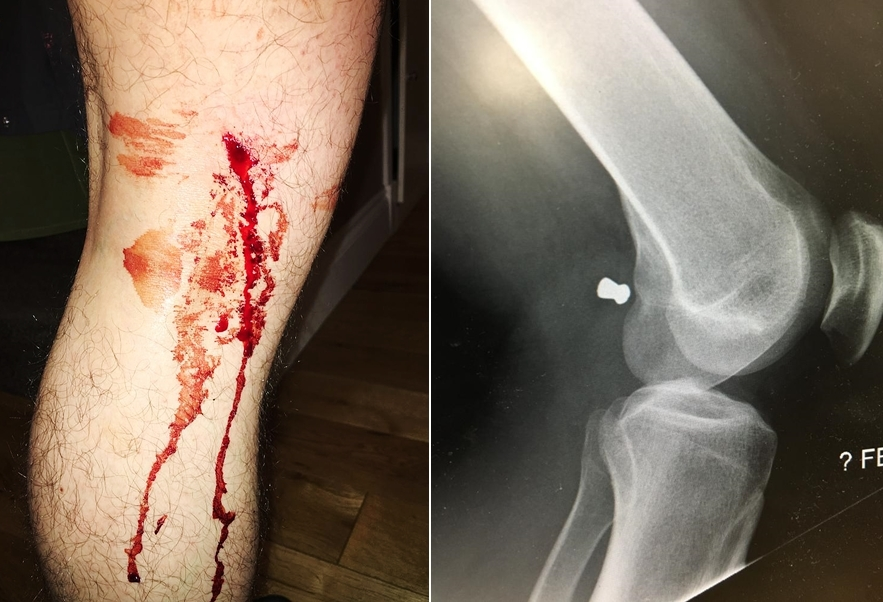 Jordan Fyfe was shot in the leg by an air gun while walking his dog in Kirkintilloch.