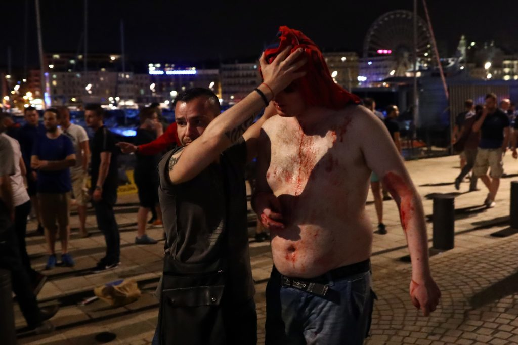MARSEILLE, FRANCE - JUNE 10: A football fan is helped away with a head wound after England fans clashed with police in Marseille on June 10, 2016 in Marseille, France. Football fans from around Europe have descended on France for the UEFA Euro 2016 football tournament. (Photo by Carl Court/Getty Images)