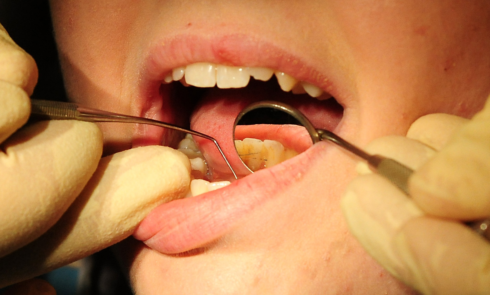 Figures show 91% of the population are signed up to a dentist.