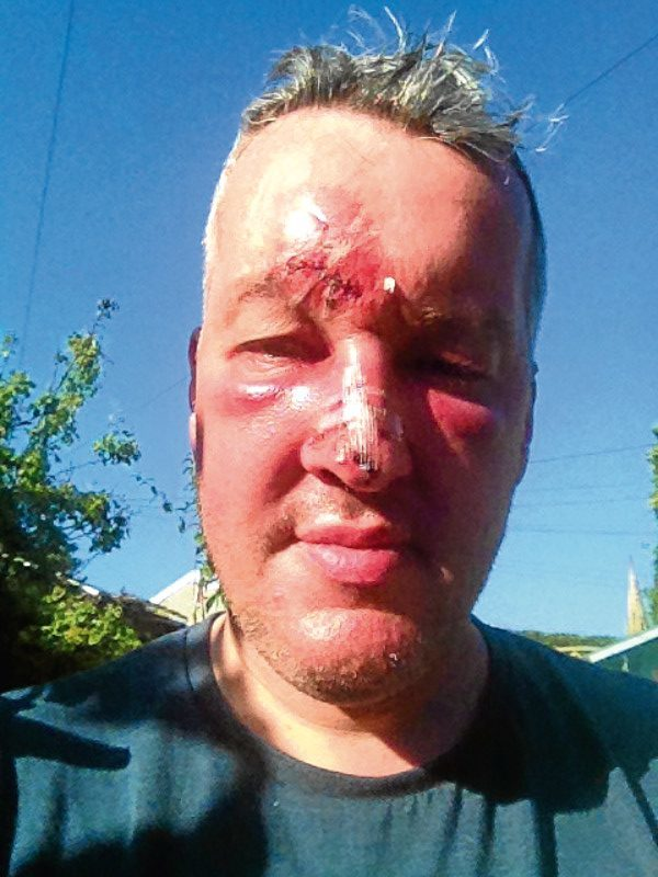 Gary Robinson after being attacked by a seagull