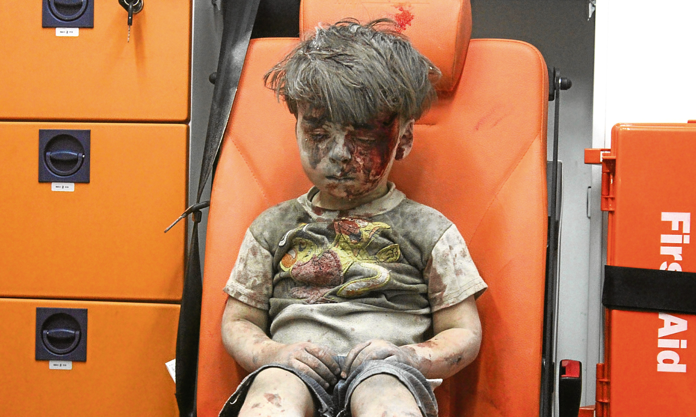 Omran Daqneesh in the back of an ambulance in Syria.