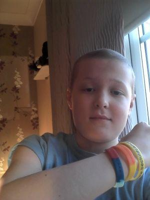 Toby when he lost his hair through chemotherapy