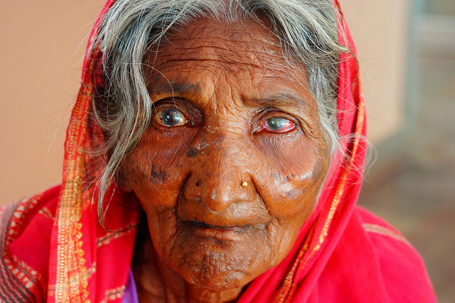 A woman suffering from a cataract