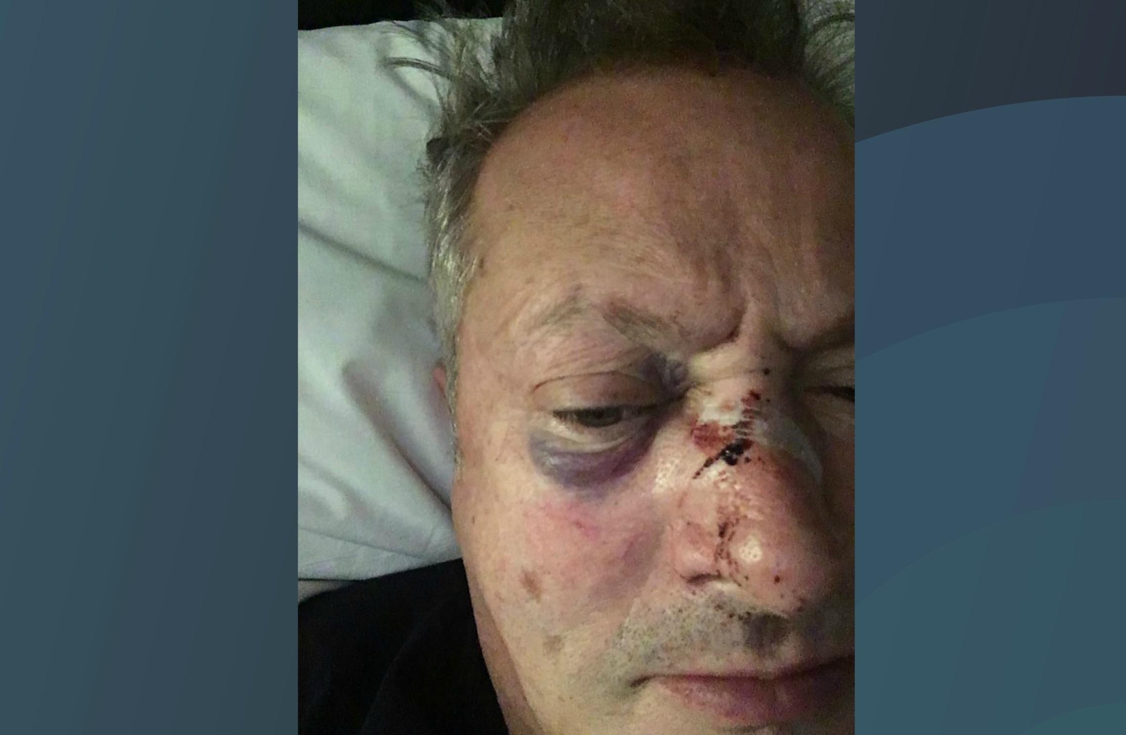 Nick Nairn was assaulted in Aberdeen.