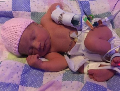 Little Emilie is now doing well — thanks to her quick thinking dad.
