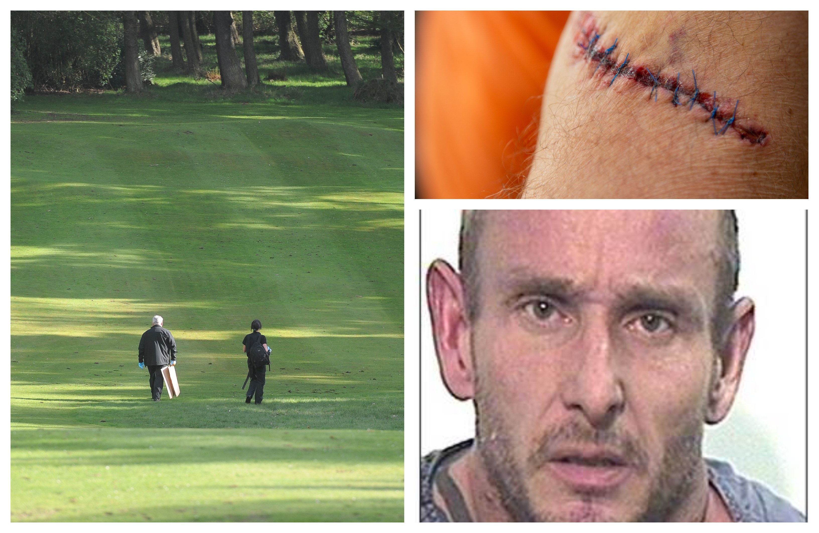 Pictured: Joe Brown, police at the scene at Caird Park following the attack and victim Arthur Innes showing off his scars from the chainsaw.