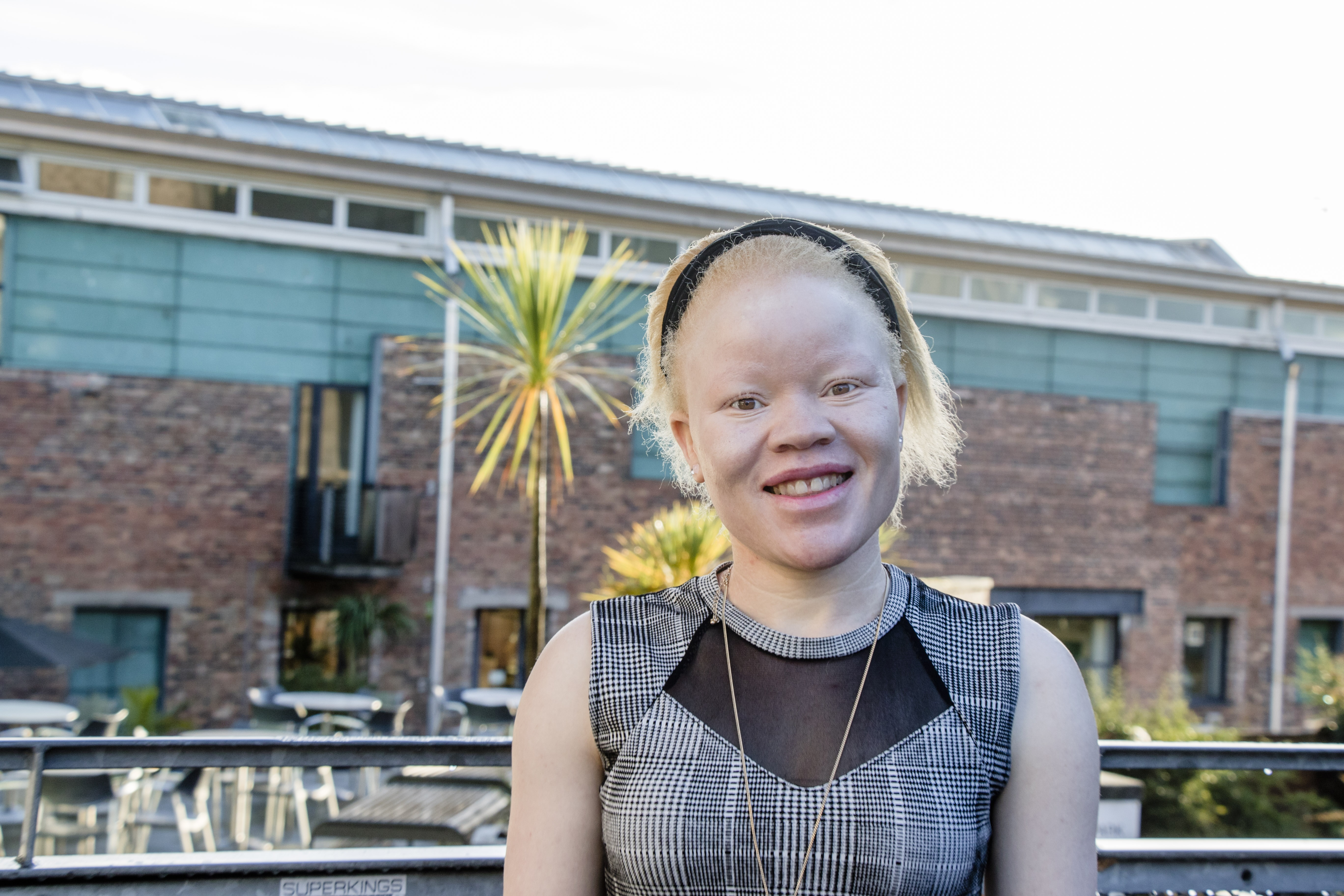 Tumeliwa Mphepo has spoken out about the persecution of people with albinism in Malawi.