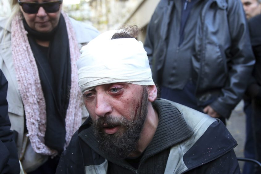 Greek freelance photographer Kostis Ntantamis is seen injured after an attack by protesters against the Macedonia name issue in Athens. At least 25 police officers were injured and seven people arrested, police said.