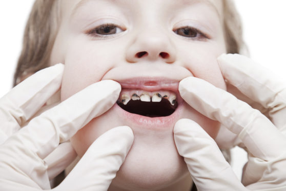 Dundee remainsone of the worst places in Scotland in terms of childhood teeth decay