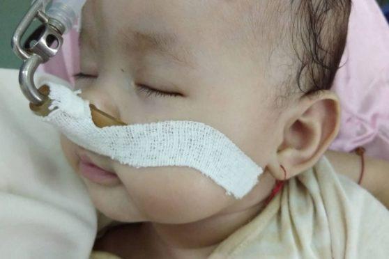 Baby Lena is awaiting surgery in Vietnam