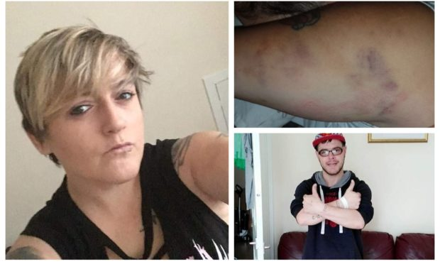 Becky Young, left, and some of her injuries. Bottom right: Alexander Smith.
