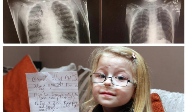 Ruby Walker received her life-saving transplant in March
