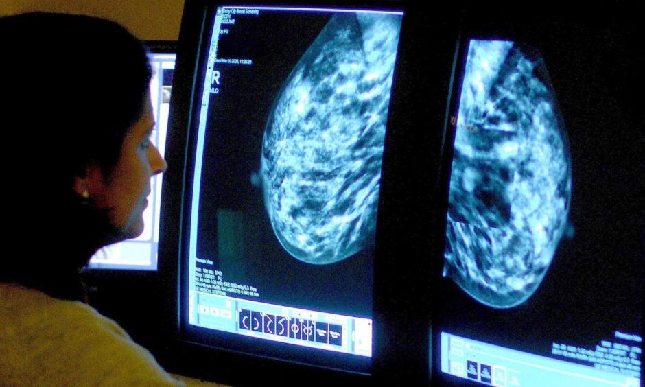 A consultant analysing a mammogram.