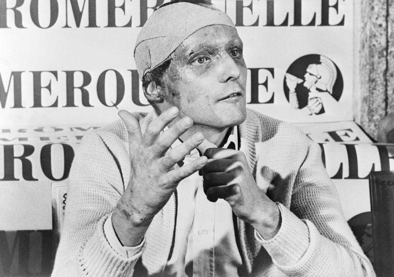 1976 file photo Austrian auto racer Niki Lauda, following his near fatal crash at the German Grand Prix six weeks ago, announces he would start at the Italian Grand Prix at Monza. Three-time Formula One world champion Niki Lauda, who won two of his titles after a horrific crash that left him with serious burns and went on to become a prominent figure in the aviation industry, has died. He was 70.