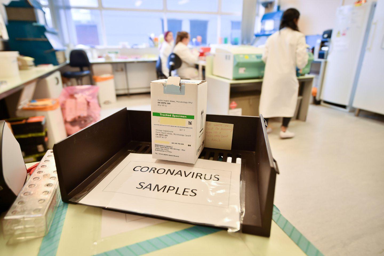 Coronavirus Covid-19 samples.