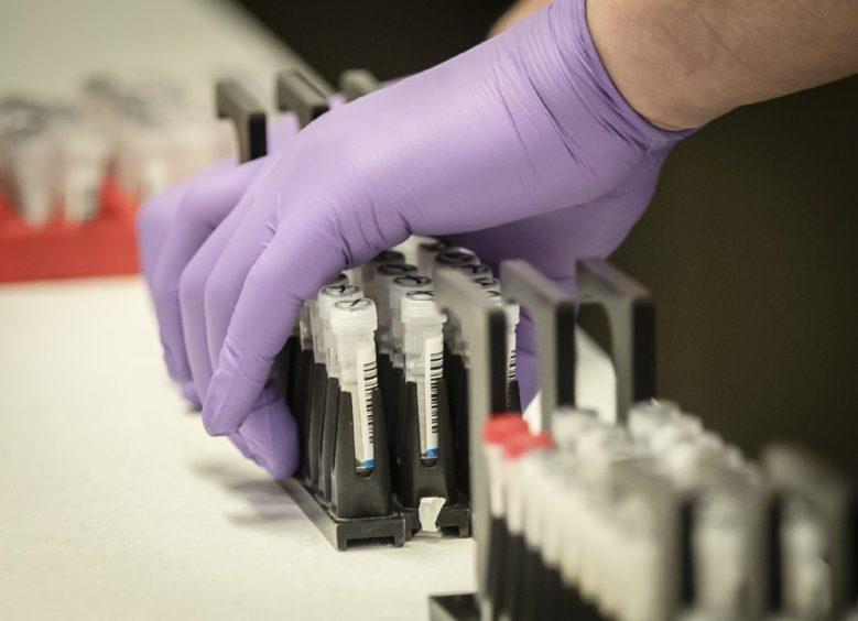 Testing for coronavirus. PA.