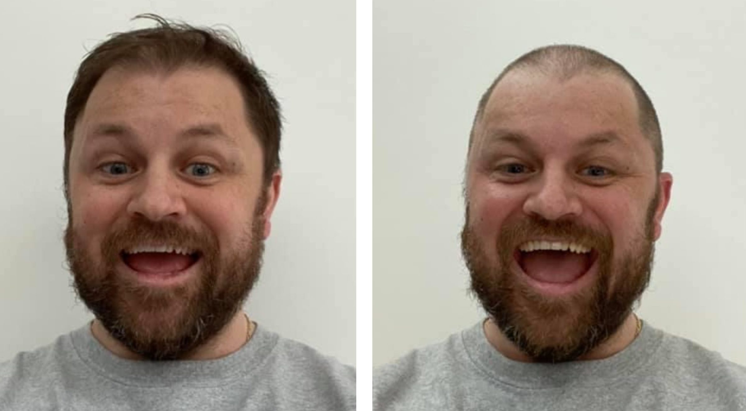 Barry Petrie, before and after the cut.