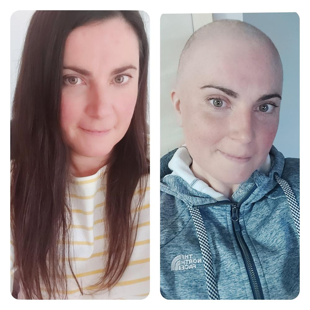 Julie Foubister is raising funds for charity while undergoing chemotherapy.