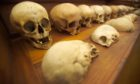 Skulls in the Old Edinburgh University Anatomy Museum circa 2004