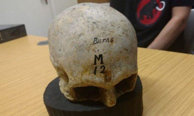 Cast of Robert Burns skull, Edinburgh Anatomical Museum. Edinburgh