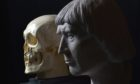 A cast of the skull believed to belong to Robert the Bruce, found in Dunfermline Abbey in 1818.
