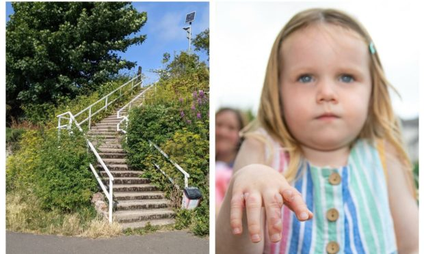 Ruby, pictured showing her burns, touched suspected giant hogweed near steps at Grassy Beach (left).