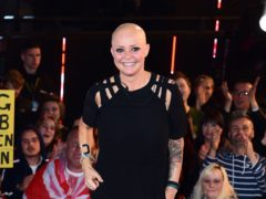 Gail Porter chooses to embrace her hair loss (Ian West/PA)