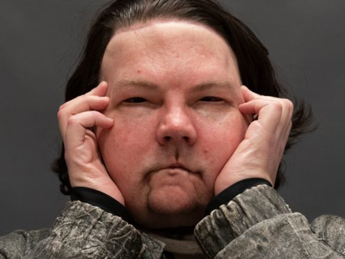 Joe DiMeo poses for a portrait, Monday, Jan. 25, 2021 at NYU Langone Health in New York, six months after an extremely rare double hand and face transplant. (AP Photo/Mark Lennihan)
