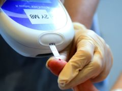Type 1 diabetes can cause musculoskeletal problems, study suggests (Peter Byrne/PA)