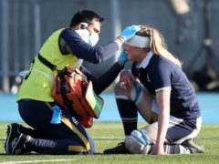 A new report has called for common protocols and better reporting for head injuries (Andrew Milligan/PA)